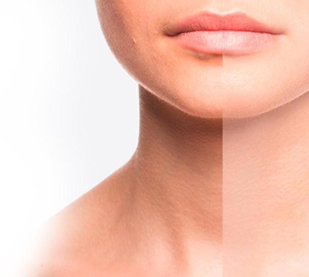 Beauty & Balance Lohr Professionelle Hautbildverbesserung und Anti Aging